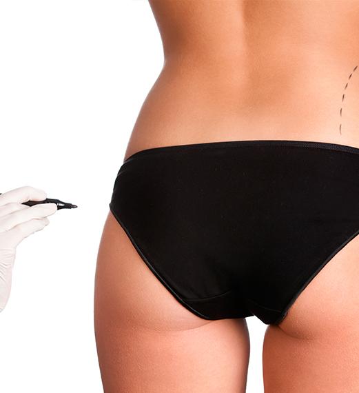 Implantes de glúteos y pantorrillas