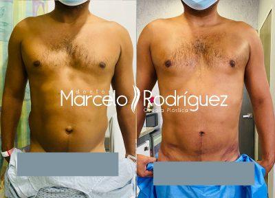caso lipoescultura hombre lipotransferencia a grasa pectoral